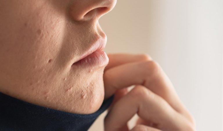 Ношение маски может вызвать кожное заболевание – маскне. Рассказываем, что это такое и как его можно избежать, не отказываясь от защиты