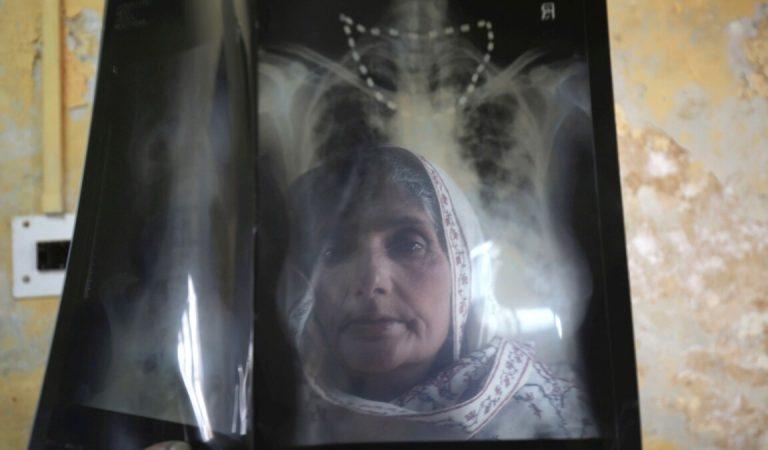 Когда 300 км до больницы. Во время пандемии больные туберкулезом оказались в еще худшем положении